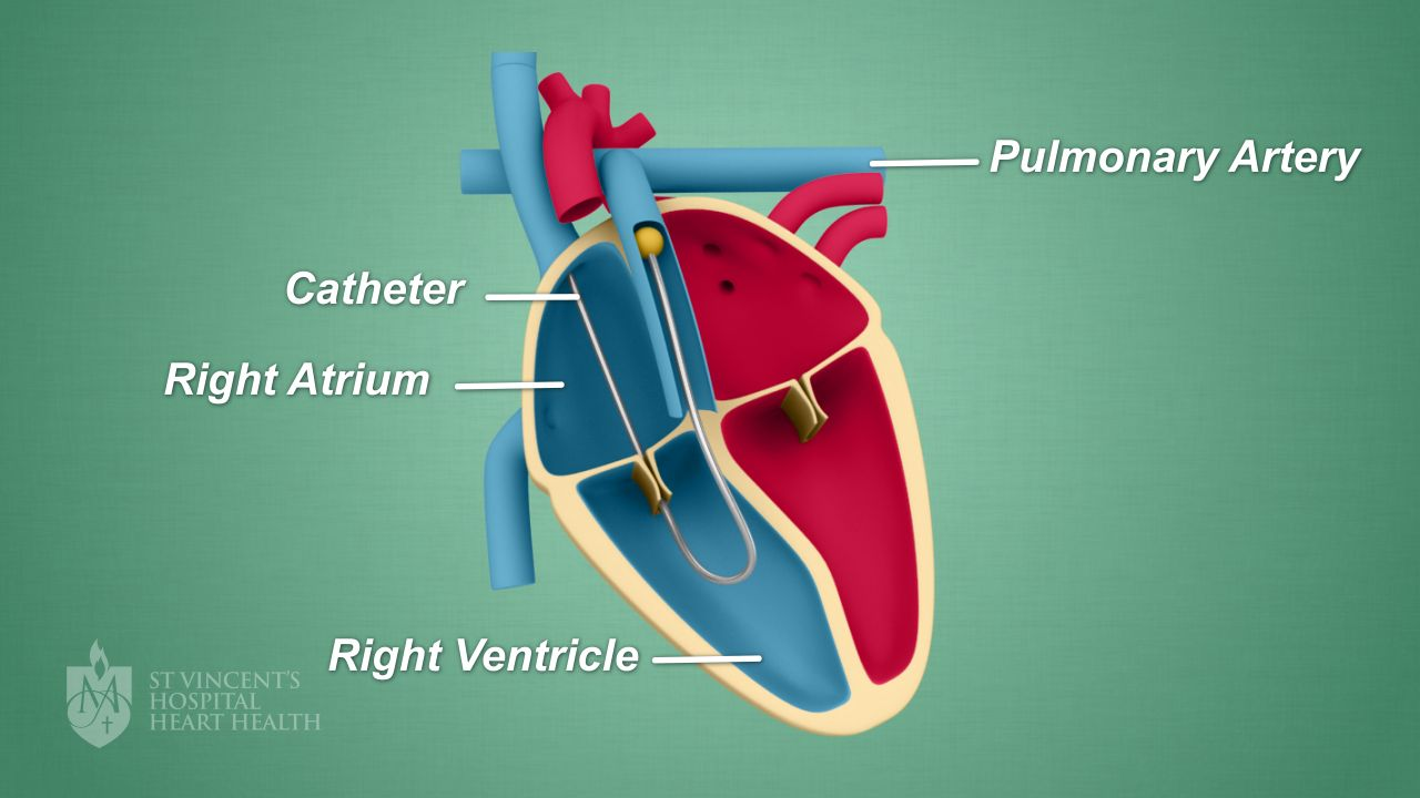 right heart catheter - st vincent's heart health