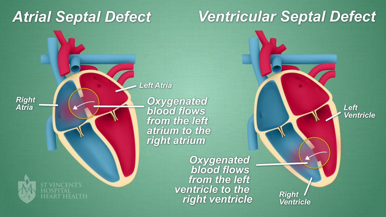 Septal Defect Hole In The Heart Closures St Vincents Heart Health