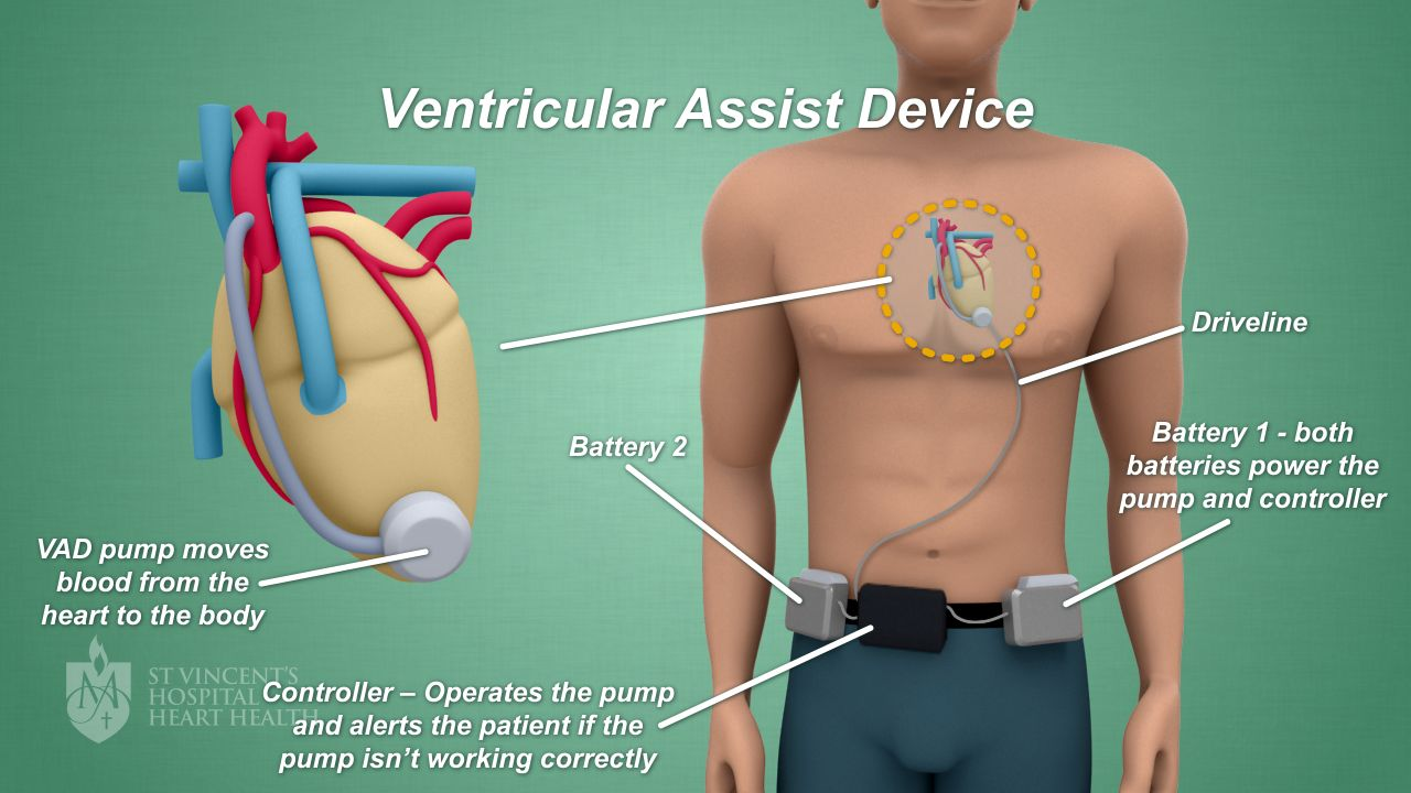 Ventricular Assists Devices - \