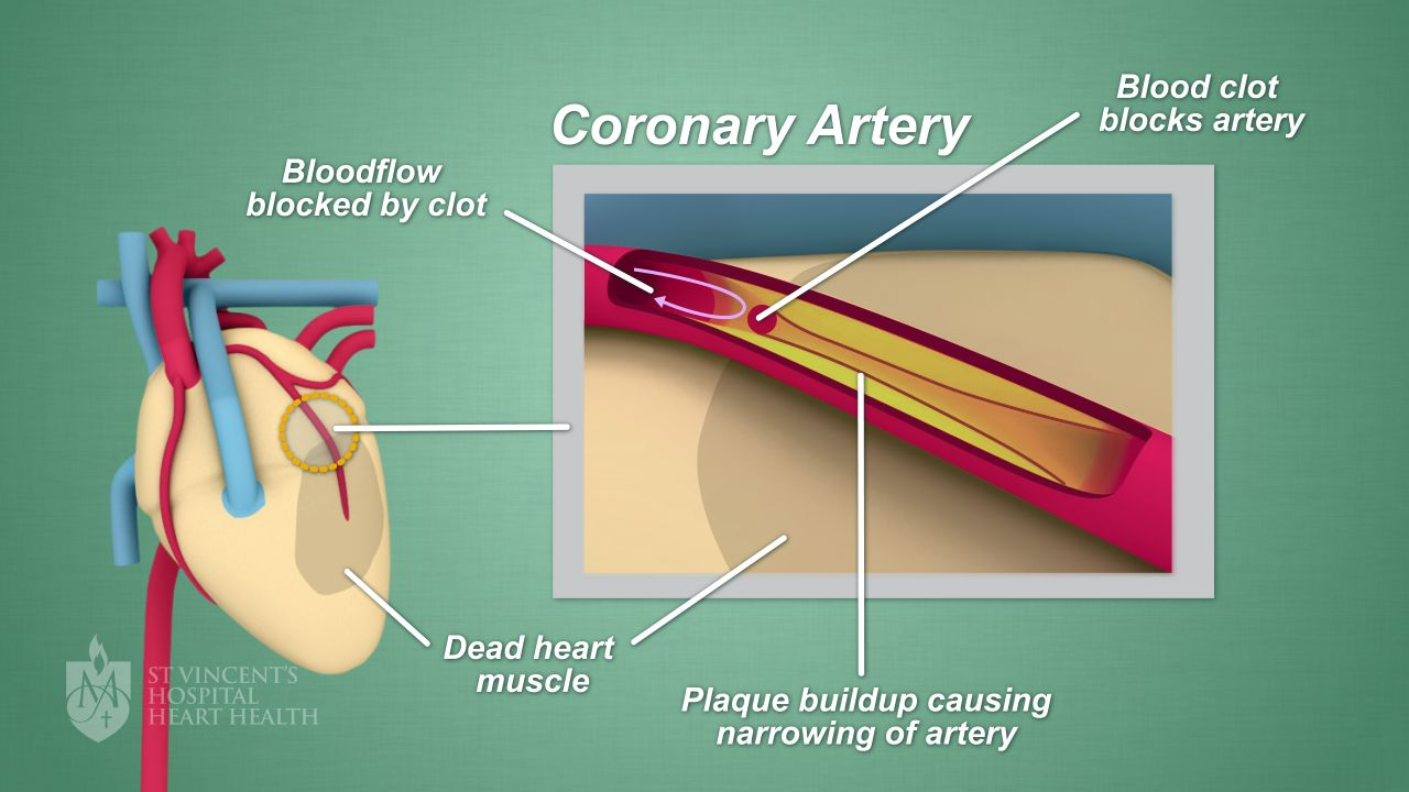 Coronary artery disease heart disease st vincents heart health if youve been diagnosed with coronary artery disease youre not alone heart disease is estimated to affect one in every six australians ccuart Choice Image