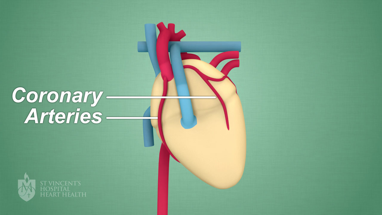 Coronary Artery Disease Heart Disease St Vincents Heart Health