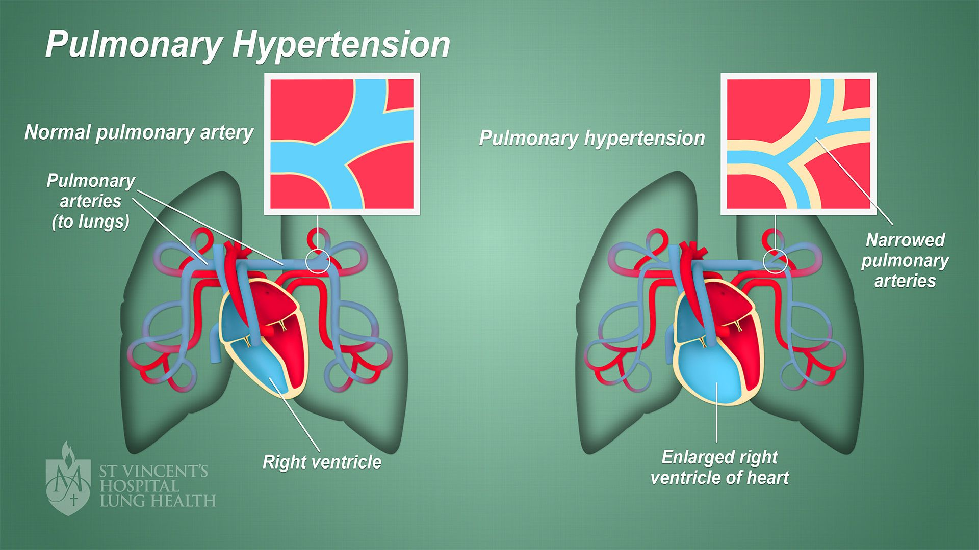 Pin on kicking pulmonary hypertension's ass