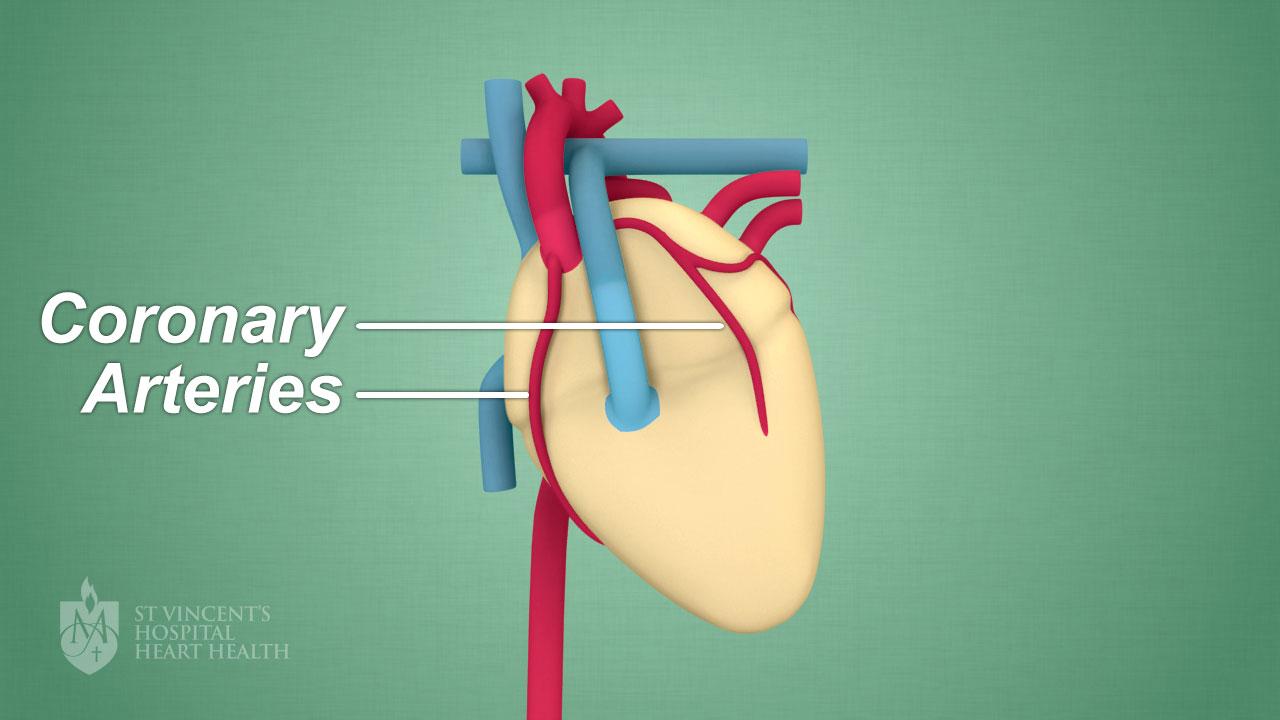 Spontaneous Coronary Artery Dissection or \