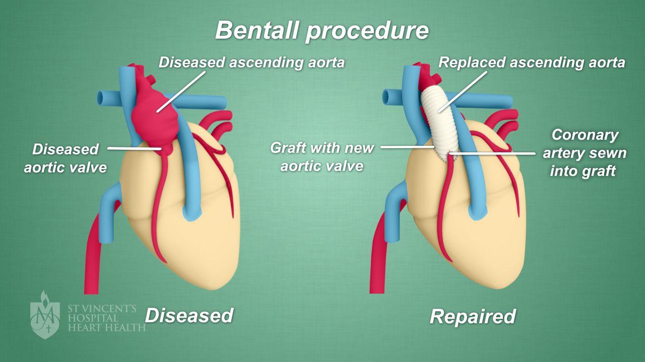 Bentall Procedure - St Vincent\'s Heart Health
