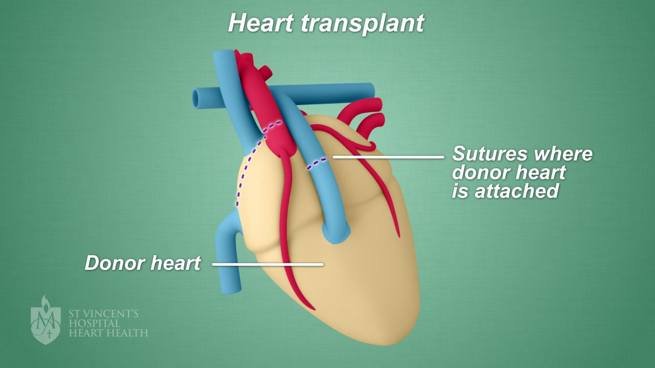Heart transplant st vincents heart health what happens after a heart transplant ccuart Images